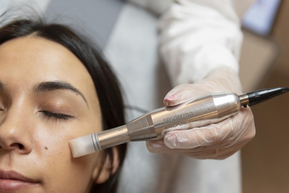 Oto 10 powodów, aby wypróbować zabieg mikronakłuwania